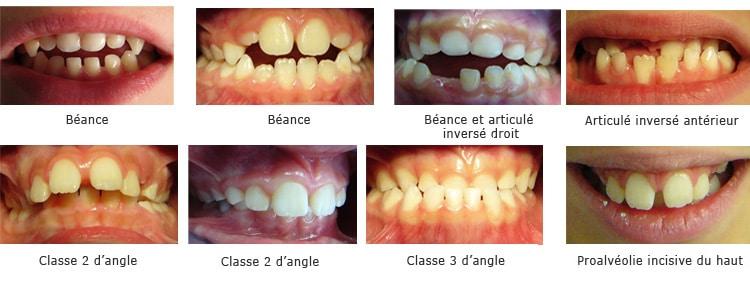 05 orthodontie fonctionnelle blog