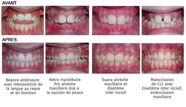 09-orthodontie-fonctionnelle appareils utilises blog cas traiites